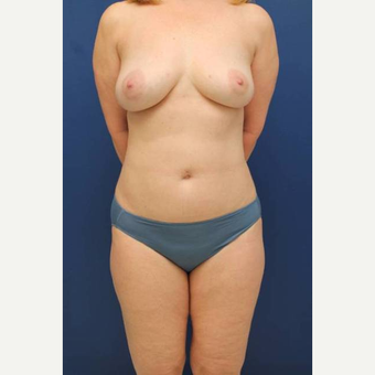 54 year old female who wanted her breast implants removed and fat transferred to her breasts after 2853948