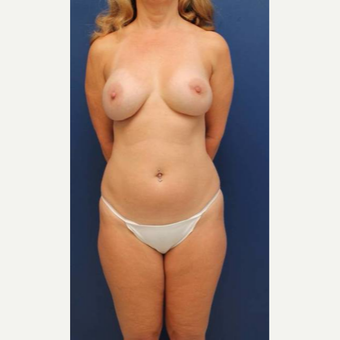 54 year old female who wanted her breast implants removed and fat transferred to her breasts before 2853948