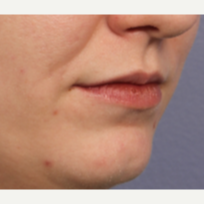 25-34 year old woman treated with Juvederm before 3659995