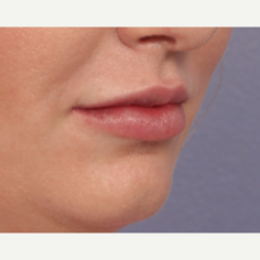 25-34 year old woman treated with Juvederm after 3659995
