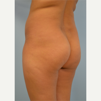 38 year old woman treated with Brazilian Butt Lift before 3432367