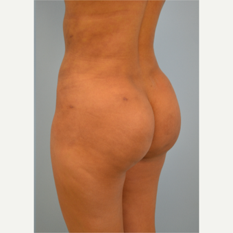 38 year old woman treated with Brazilian Butt Lift after 3432367