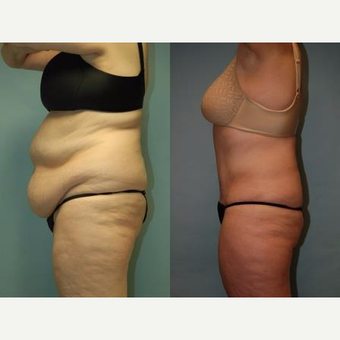 "58 year old woman, 5'6"", 188 lbs. four months after lipoabdominoplasty before 3771628"