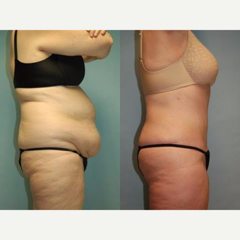 "58 year old woman, 5'6"", 188 lbs. four months after lipoabdominoplasty after 3771628"
