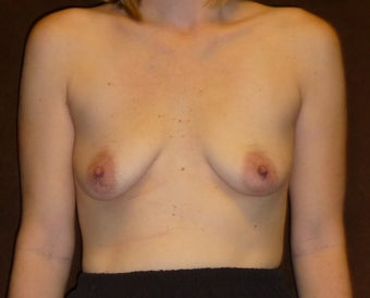 34 Year Old Female Treated for Small, Saggy Breasts before 1425871