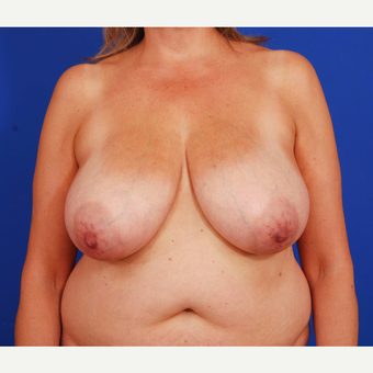 45-54 year old woman treated with Breast Reduction before 3731108