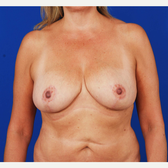 45-54 year old woman treated with Breast Reduction after 3731108