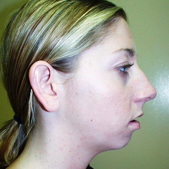 Chin Surgery before 3175434