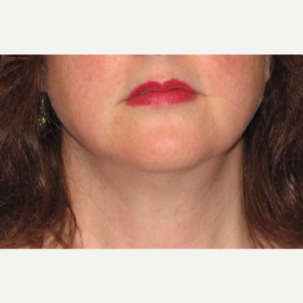 35-44 year old woman treated with Chin Liposuction after 3638347