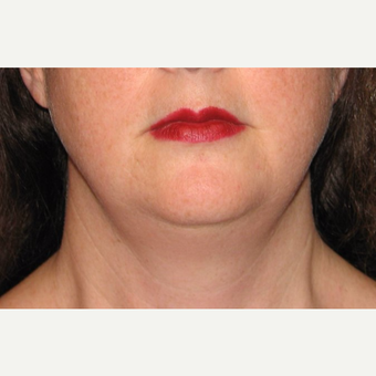 35-44 year old woman treated with Chin Liposuction before 3638347