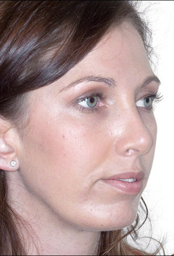 Rhinoplasty and Chin Augmentation after 1023312