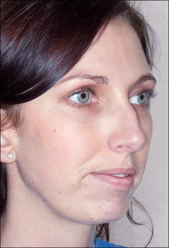 Rhinoplasty and Chin Augmentation before 1023312
