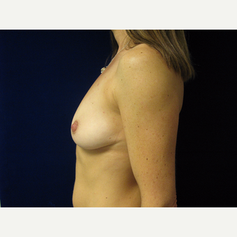 25-34 year old woman treated with Breast Implants before 3711729