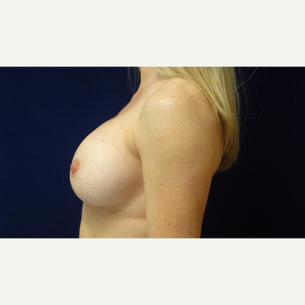 25-34 year old woman treated with Breast Implants after 3711729