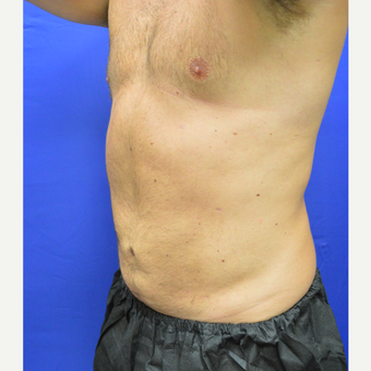 25-34 year old man treated with Liposuction after 3366263