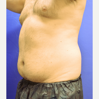 25-34 year old man treated with Liposuction before 3366263