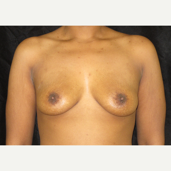 25-34 year old woman treated with Breast Augmentation before 3424953