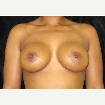 25-34 year old woman treated with Breast Augmentation after 3424953