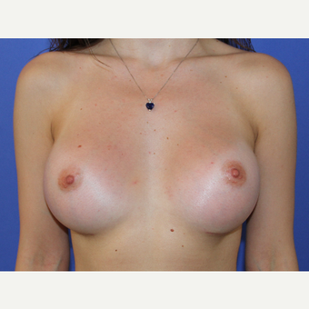 25-34 year old woman treated with Breast Implants after 3201189