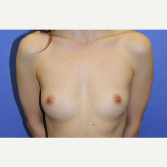 25-34 year old woman treated with Breast Implants before 3201189