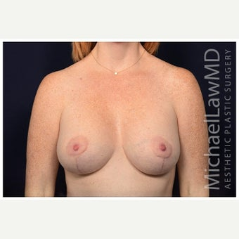 35-44 year old woman treated with Breast Augmentation after 1650756