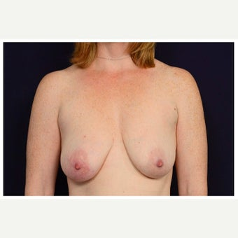 35-44 year old woman treated with Breast Augmentation before 1650756