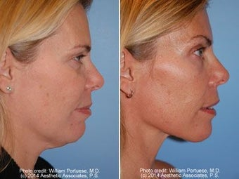 Neck Liposuction before 212280