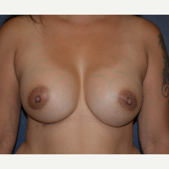 35-44 year old woman treated with Breast Augmentation after 3455162