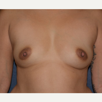 35-44 year old woman treated with Breast Augmentation before 3455162