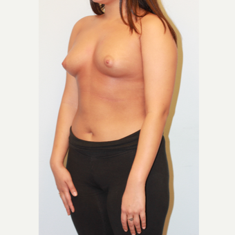 18-24 year old woman treated with Breast Augmentation before 3026965