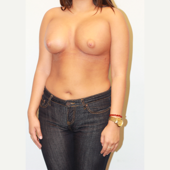 18-24 year old woman treated with Breast Augmentation after 3026965