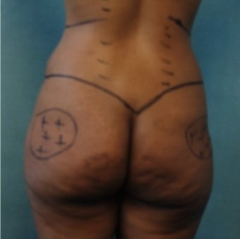 33 year old woman treated with Fat Transfer to Buttock and Hips, Liposuction to Abs, Flank, Back 1811389