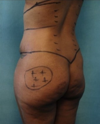 33 year old woman treated with Fat Transfer to Buttock and Hips, Liposuction to Abs, Flank, Back before 1811389