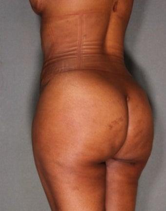 33 year old woman treated with Fat Transfer to Buttock and Hips, Liposuction to Abs, Flank, Back after 1811389