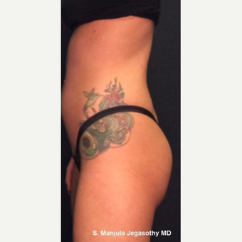 Mild Gluteal Lift with 1 Ultherapy Treatment after 3849012