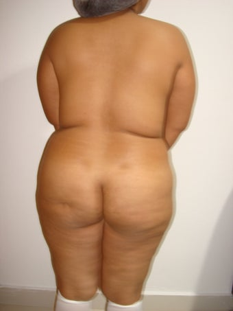 Patient    with  23  years   all  overweight   who  has lost  all her  shapes  before 1104242