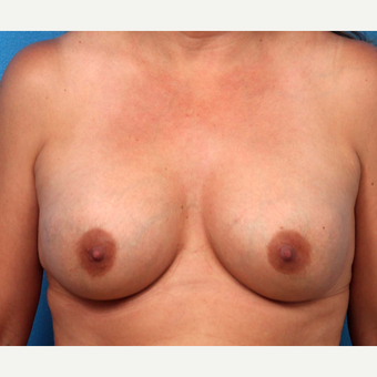 18-24 year old woman treated with Breast Augmentation after 3366910