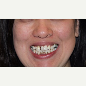 25-34 year old woman treated with All-on-4 Dental Implants before 1762335