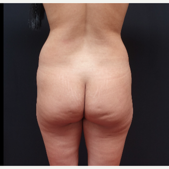 25-34 year old woman treated with Tumescent Liposuction before 3280016