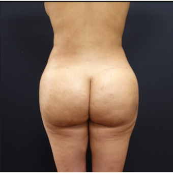 25-34 year old woman treated with Tumescent Liposuction after 3280016