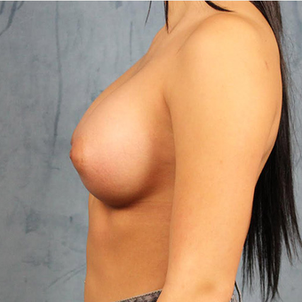 Mentor Breast Implants after 3033671