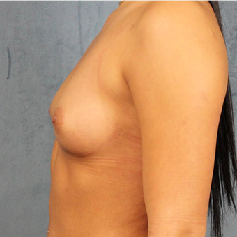 Mentor Breast Implants before 3033671