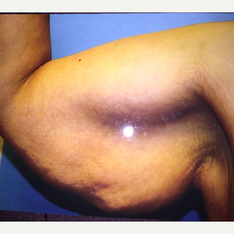 45-54 year old woman treated with Arm Lift before 3333401