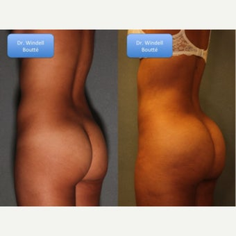 18-24 year old woman treated with Fat Transfer to Buttocks, and Liposuction to Waistline