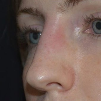 25-34 year old woman treated with Non Surgical Nose Job 1653590
