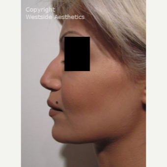 Non Surgical Nose Job to Fix Bump before 2975856