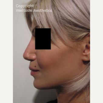 Non Surgical Nose Job to Fix Bump after 2975856