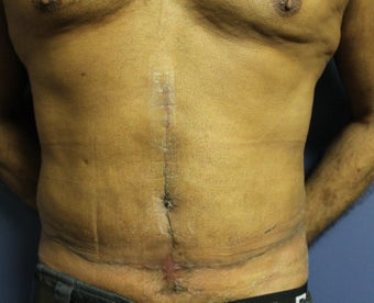 55 year old male tummy tuck after 1064703
