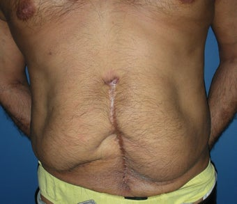 55 year old male tummy tuck before 1064703