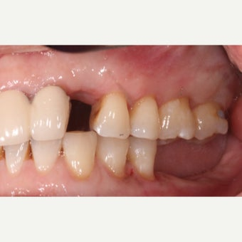 35-44 year old woman treated with Dental Implants before 2178356